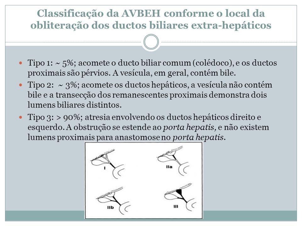 Classificação da AVBEH conforme o local da obliteração dos ductos biliares extra-hepáticos Tipo 1: ~ 5%; acomete o ducto biliar comum (colédoco), e os