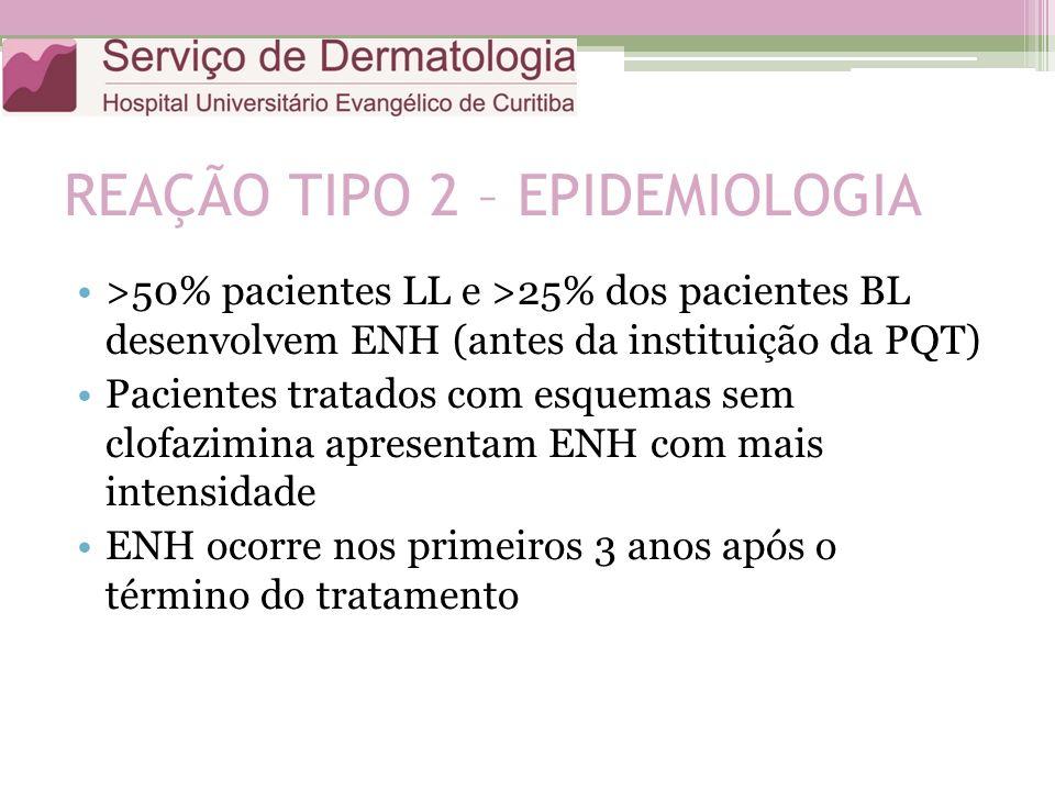 REAÇÃO TIPO 2 – EPIDEMIOLOGIA >50% pacientes LL e >25% dos pacientes BL desenvolvem ENH (antes da instituição da PQT) Pacientes tratados com esquemas