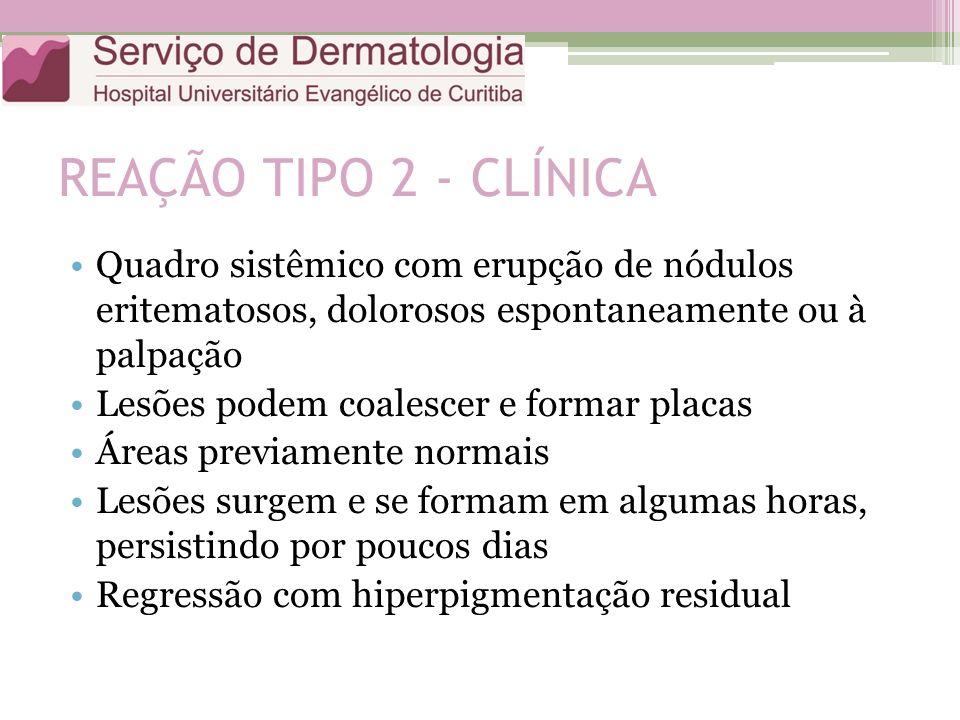 REAÇÃO TIPO 2 - CLÍNICA Quadro sistêmico com erupção de nódulos eritematosos, dolorosos espontaneamente ou à palpação Lesões podem coalescer e formar