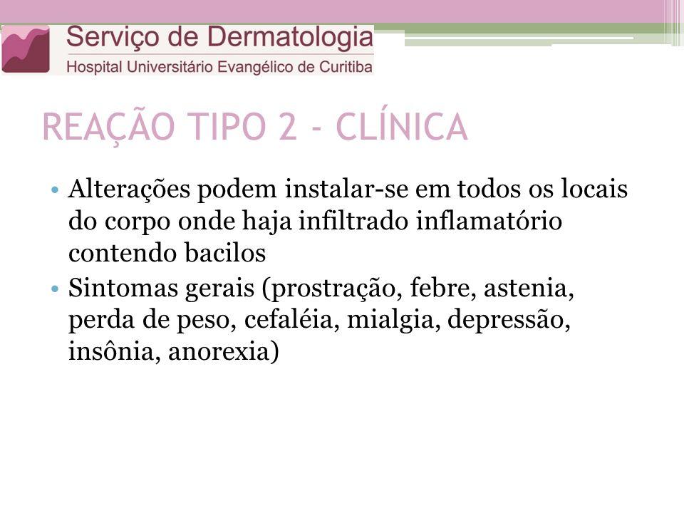 REAÇÃO TIPO 2 - CLÍNICA Alterações podem instalar-se em todos os locais do corpo onde haja infiltrado inflamatório contendo bacilos Sintomas gerais (p