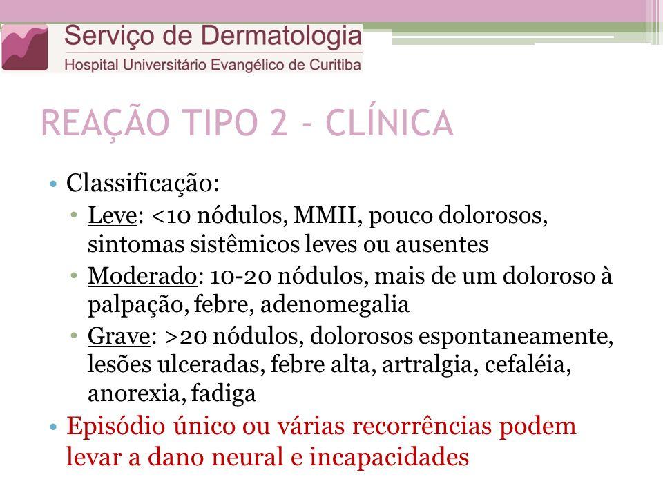 REAÇÃO TIPO 2 - CLÍNICA Classificação: Leve: <10 nódulos, MMII, pouco dolorosos, sintomas sistêmicos leves ou ausentes Moderado: 10-20 nódulos, mais d