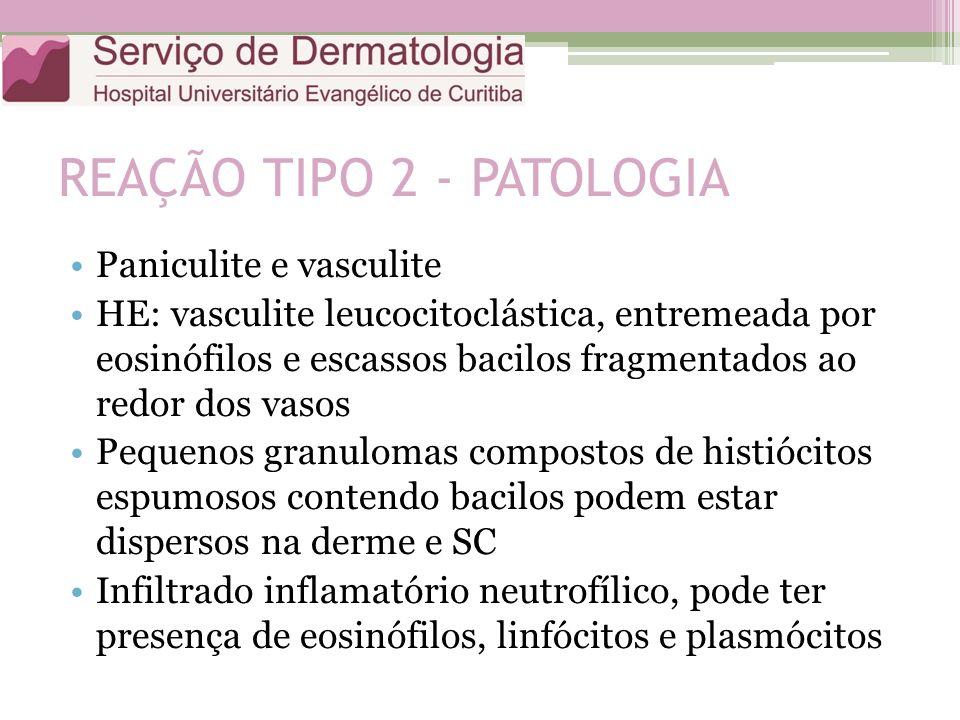 REAÇÃO TIPO 2 - PATOLOGIA Paniculite e vasculite HE: vasculite leucocitoclástica, entremeada por eosinófilos e escassos bacilos fragmentados ao redor