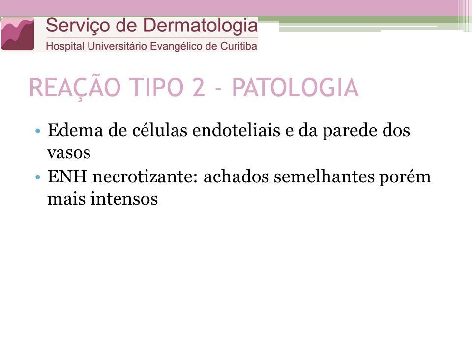 REAÇÃO TIPO 2 - PATOLOGIA Edema de células endoteliais e da parede dos vasos ENH necrotizante: achados semelhantes porém mais intensos
