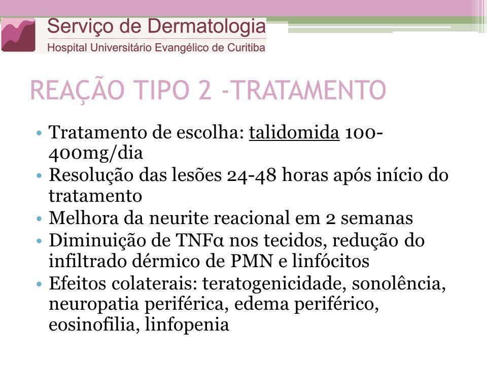 REAÇÃO TIPO 2 -TRATAMENTO Tratamento de escolha: talidomida 100- 400mg/dia Resolução das lesões 24-48 horas após início do tratamento Melhora da neuri