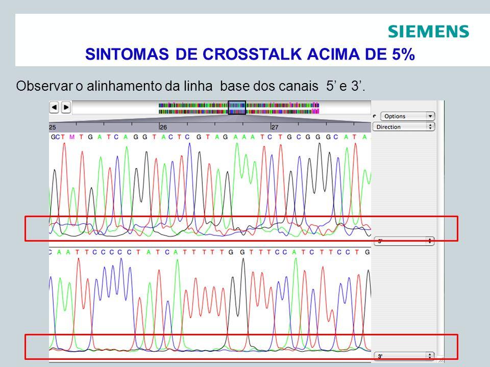 Pag 15 Siemens Healthcare DiagnósticosAssessoria Científica Observar o alinhamento da linha base dos canais 5 e 3. SINTOMAS DE CROSSTALK ACIMA DE 5%