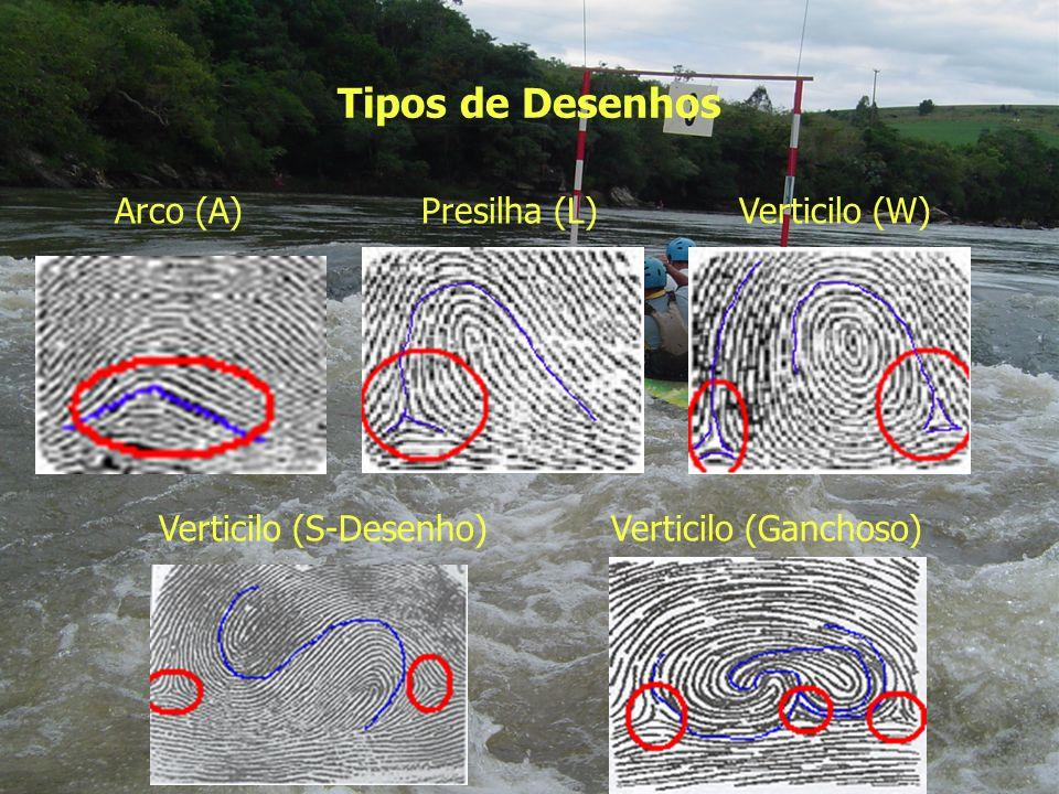 Tipos de Desenhos Arco (A) Presilha (L) Verticilo (W) Verticilo (S-Desenho)Verticilo (Ganchoso)