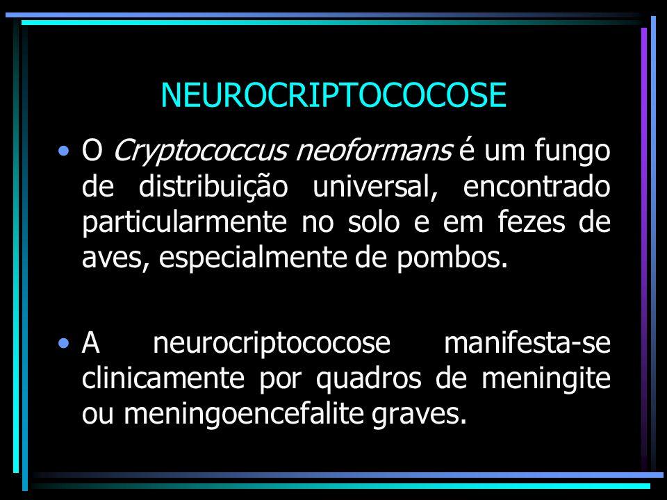 NEUROCRIPTOCOCOSE O Cryptococcus neoformans é um fungo de distribuição universal, encontrado particularmente no solo e em fezes de aves, especialmente de pombos.