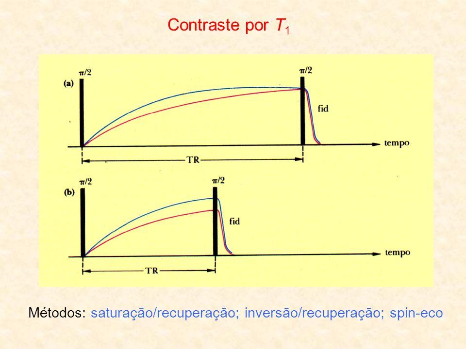 Contraste por T 1 Métodos: saturação/recuperação; inversão/recuperação; spin-eco