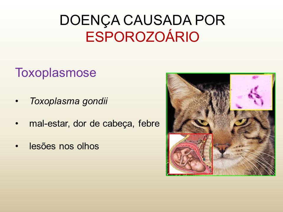 Toxoplasmose Toxoplasma gondii mal-estar, dor de cabeça, febre lesões nos olhos DOENÇA CAUSADA POR ESPOROZOÁRIO