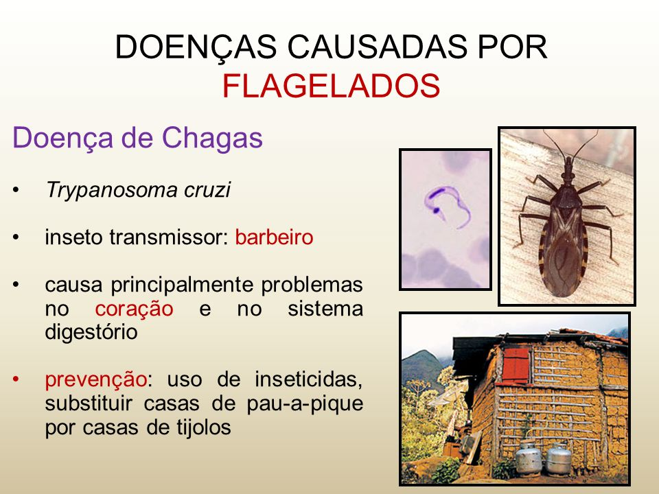 DOENÇAS CAUSADAS POR FLAGELADOS Doença de Chagas Trypanosoma cruzi inseto transmissor: barbeiro causa principalmente problemas no coração e no sistema