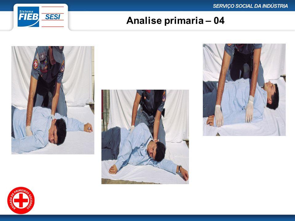 Analise primaria – 04