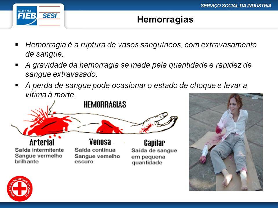Hemorragias Hemorragia é a ruptura de vasos sanguíneos, com extravasamento de sangue. A gravidade da hemorragia se mede pela quantidade e rapidez de s