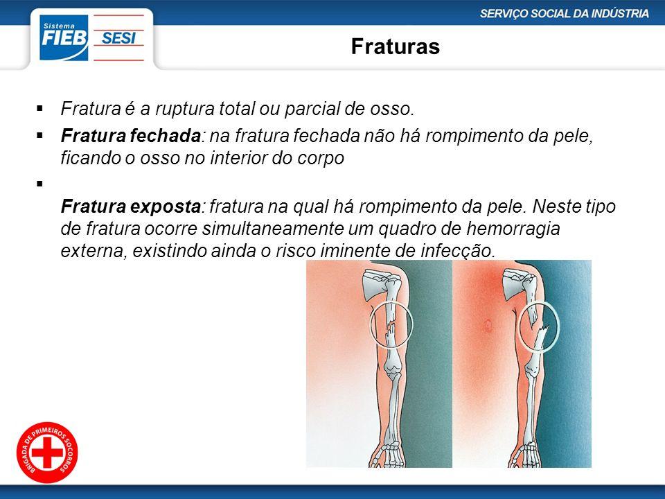 Fraturas Fratura é a ruptura total ou parcial de osso. Fratura fechada: na fratura fechada não há rompimento da pele, ficando o osso no interior do co
