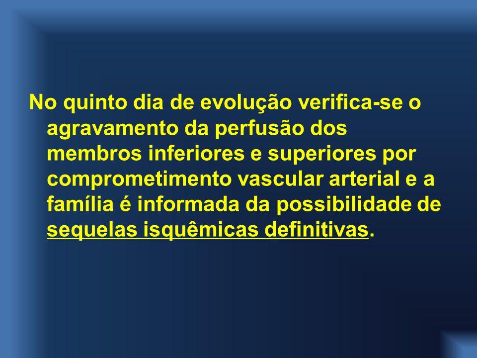 No quinto dia de evolução verifica-se o agravamento da perfusão dos membros inferiores e superiores por comprometimento vascular arterial e a família