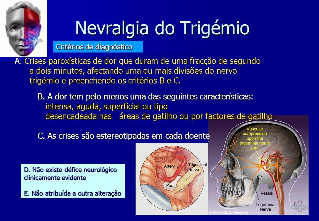 Nevralgia do Trigémio Nevralgia do Trigémio B. A dor tem pelo menos uma das seguintes características: intensa, aguda, superficial ou tipo intensa, ag