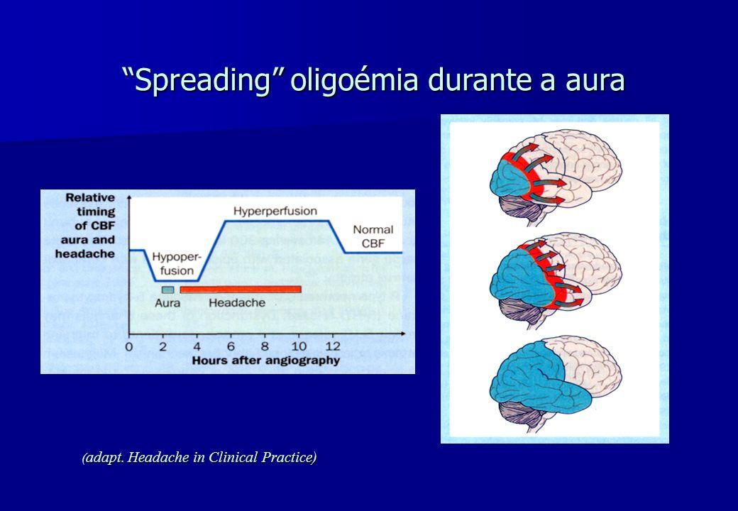 Spreading oligoémia durante a aura ( adapt. Headache in Clinical Practice)
