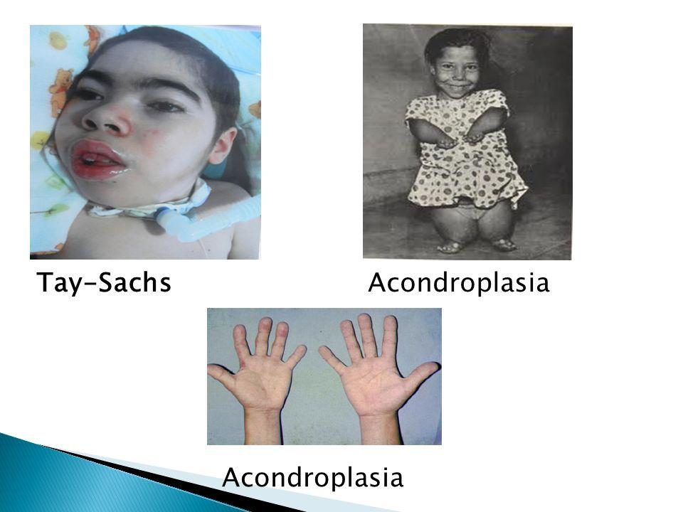 Tay-SachsAcondroplasia