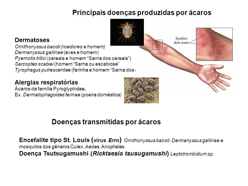 Principais doenças produzidas por ácaros Dermatoses Ornithonyssus bacoti (roedores e homem) Dermanyssus gallinae (aves e homem) Pyemotis tritici (cereais e homem Sarna dos cereais) Sarcoptes scabiei (homem Sarna ou escabiose Tyrophagus putrescentiae (farinha e homem Sarna dos especieiros) Alergias respiratórias Ácaros da família Pyroglyphidae.