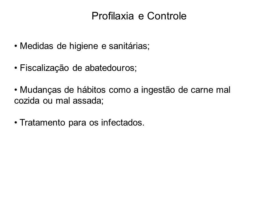 Profilaxia e Controle Medidas de higiene e sanitárias; Fiscalização de abatedouros; Mudanças de hábitos como a ingestão de carne mal cozida ou mal ass