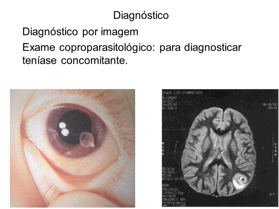 Diagnóstico por imagem Exame coproparasitológico: para diagnosticar teníase concomitante. Diagnóstico