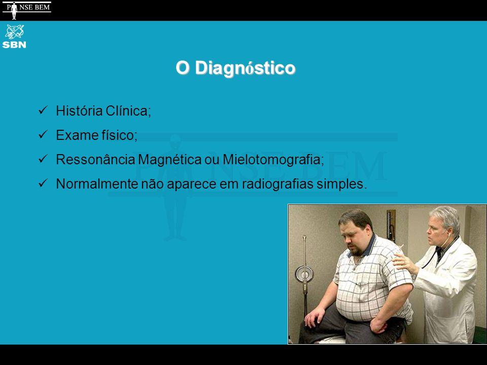 O Diagn ó stico História Clínica; Exame físico; Ressonância Magnética ou Mielotomografia; Normalmente não aparece em radiografias simples.