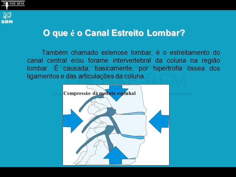 O que é o Canal Estreito Lombar.