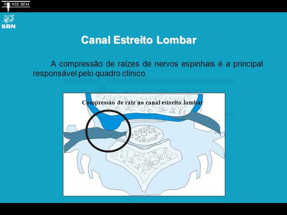 Canal Estreito Lombar A compressão de raízes de nervos espinhais é a principal responsável pelo quadro clínico.