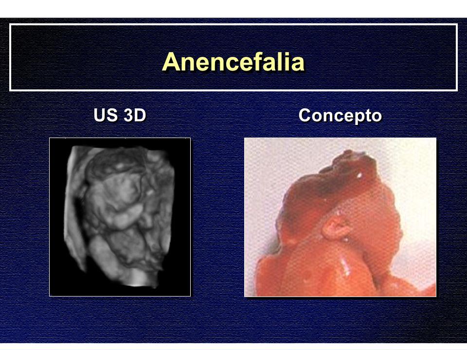 AnencefaliaAnencefalia US 3D Concepto