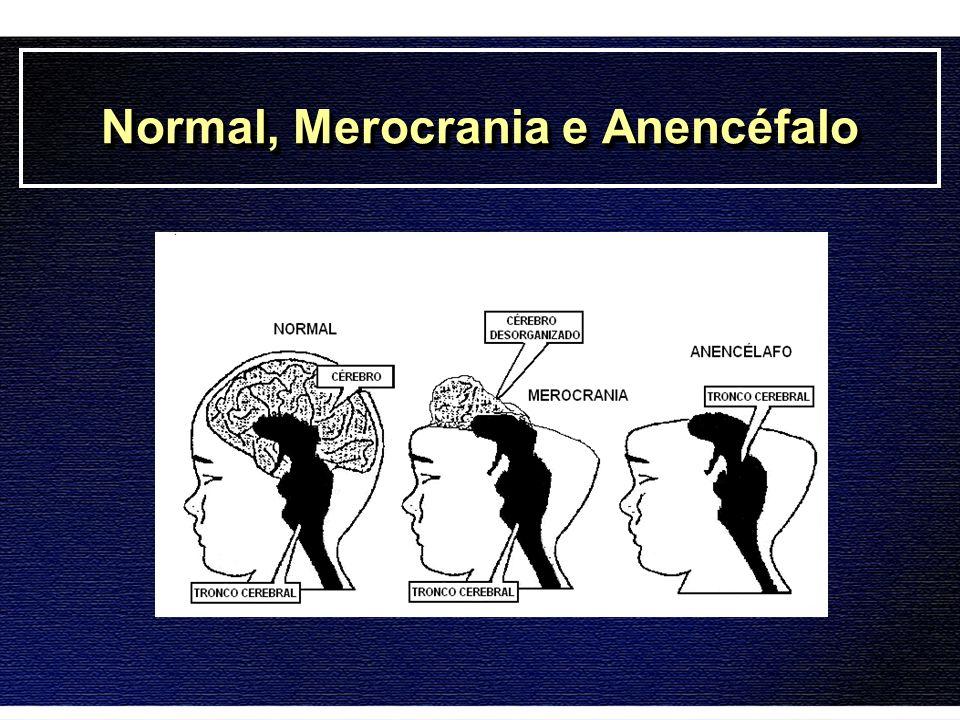 Eletroencefalograma Normal