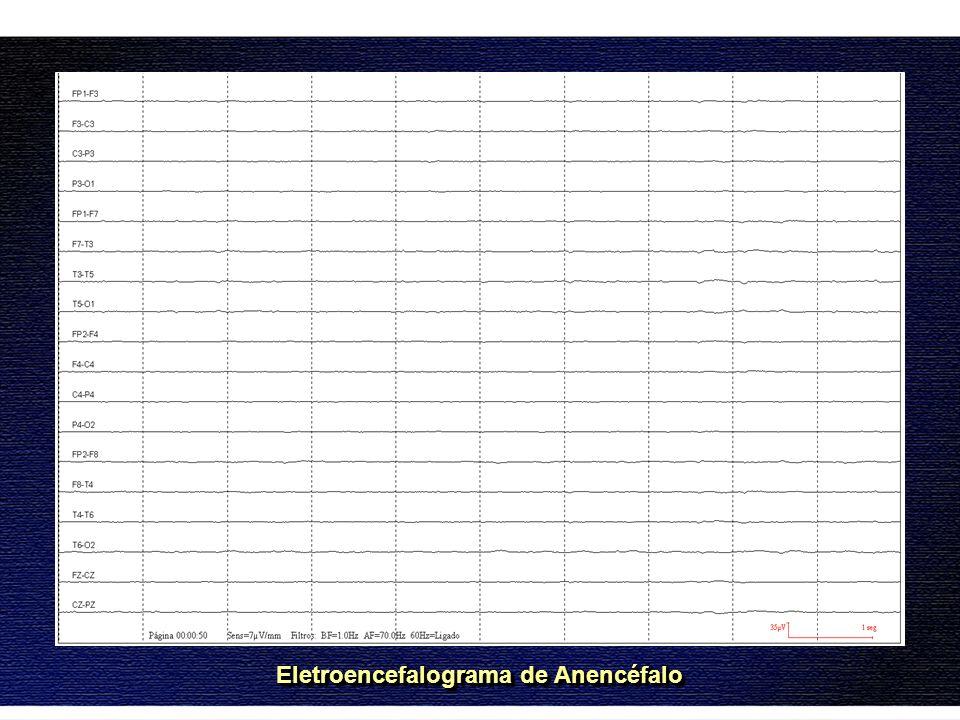 Eletroencefalograma de Anencéfalo
