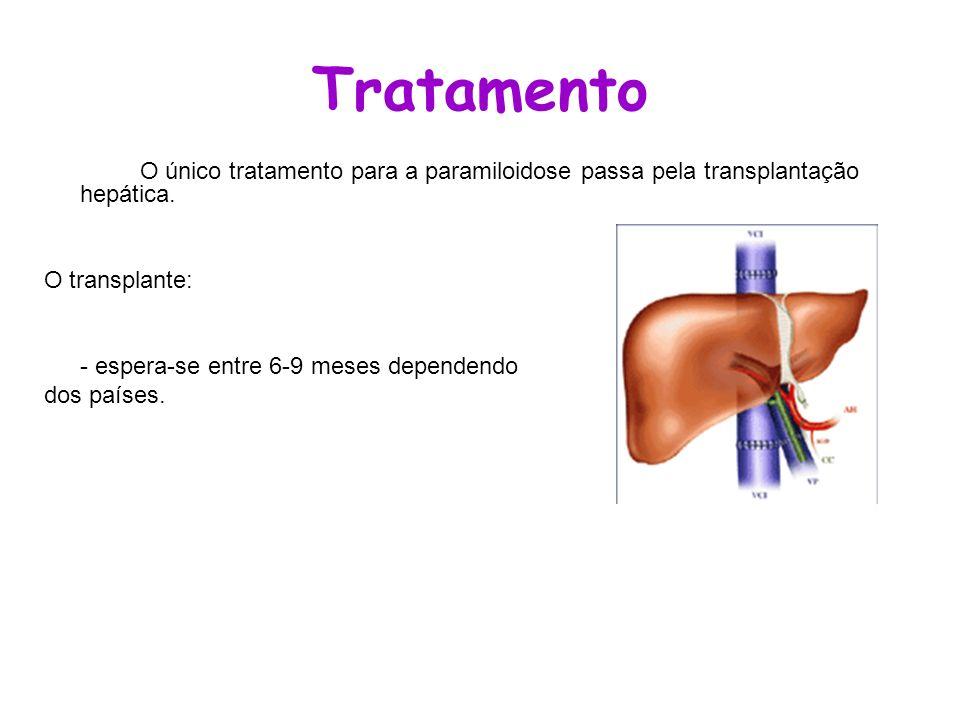 Tratamento O único tratamento para a paramiloidose passa pela transplantação hepática. O transplante: - espera-se entre 6-9 meses dependendo dos paíse