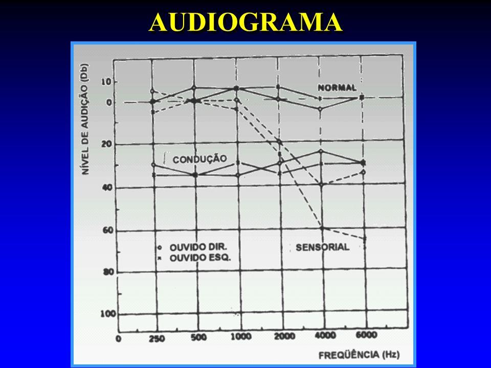 AUDIOGRAMAAUDIOGRAMA