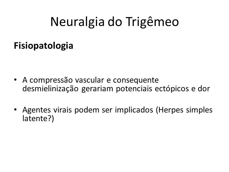 Neuralgia do Trigêmeo Fisiopatologia A compressão vascular e consequente desmielinização gerariam potenciais ectópicos e dor Agentes virais podem ser