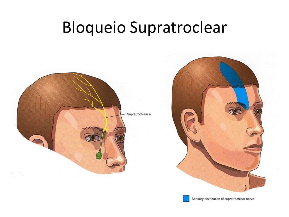 Bloqueio Supratroclear