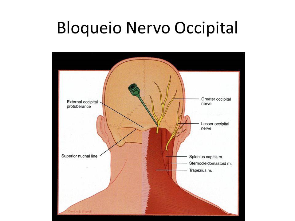 Bloqueio Nervo Occipital