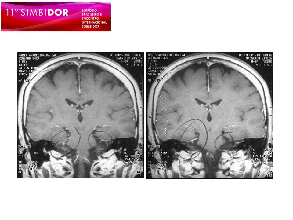 Neuralgia supratroclear Dor oriunda do nervo supratroclear Dor confinada à porção medial da fronte, com resposta absoluta ao bloqueio anestésico do nervo supratroclear Pareja JA, et al.