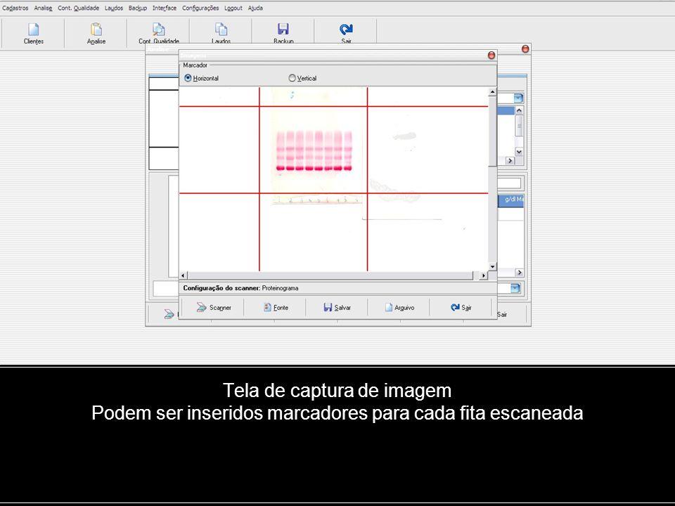 Tela de captura de imagem Podem ser inseridos marcadores para cada fita escaneada
