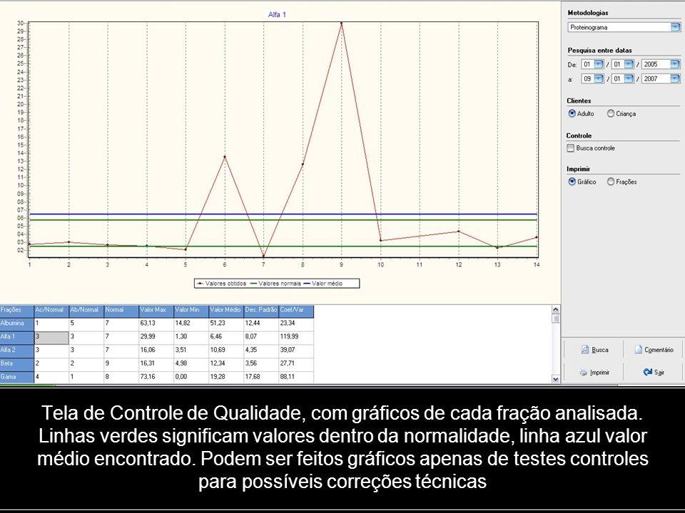 Tela de Controle de Qualidade, com gráficos de cada fração analisada. Linhas verdes significam valores dentro da normalidade, linha azul valor médio e