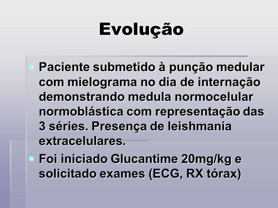 Evolução Paciente submetido à punção medular com mielograma no dia de internação demonstrando medula normocelular normoblástica com representação das