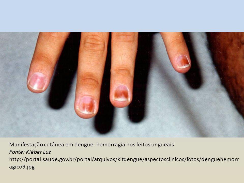 Manifestação cutânea em dengue: hemorragia Fonte: Kléber Luz http://portal.saude.gov.br/portal/arquivos/kitdengue/aspectosclinicos/fotos/denguehemorragic o16.jpg