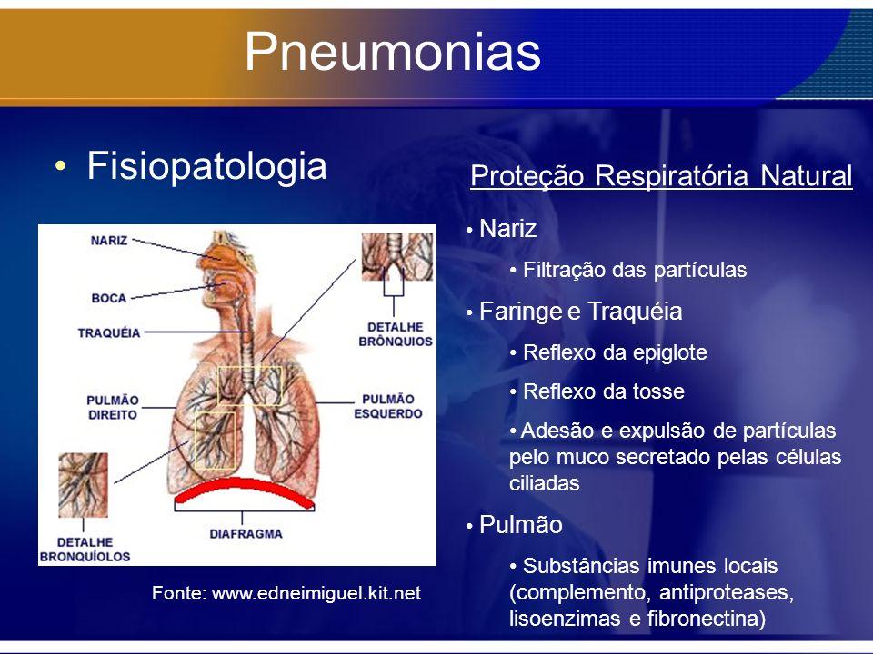 Pneumonias Fisiopatologia Fonte: www.edneimiguel.kit.net Nariz Filtração das partículas Faringe e Traquéia Reflexo da epiglote Reflexo da tosse Adesão