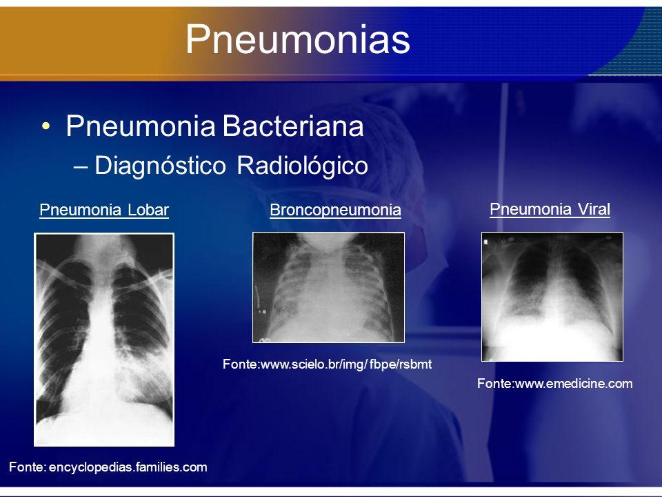 Pneumonias Pneumonia Bacteriana –Diagnóstico Radiológico Fonte: encyclopedias.families.com Pneumonia LobarBroncopneumonia Fonte:www.scielo.br/img/ fbp
