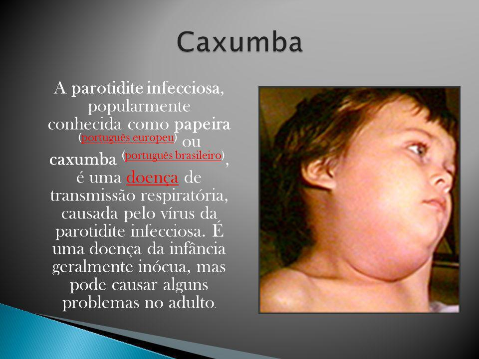 A parotidite infecciosa, popularmente conhecida como papeira (português europeu) ou caxumba (português brasileiro), é uma doença de transmissão respir