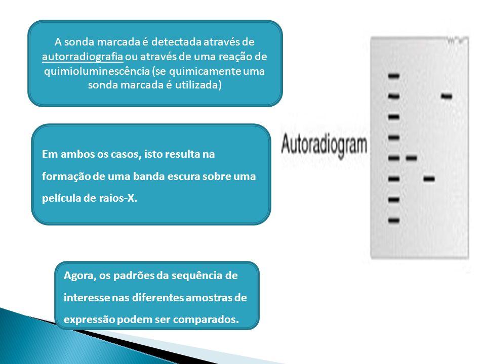 Agora, os padrões da sequência de interesse nas diferentes amostras de expressão podem ser comparados. A sonda marcada é detectada através de autorrad