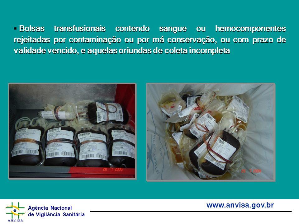 Agência Nacional de Vigilância Sanitária www.anvisa.gov.br Bolsas transfusionais contendo sangue ou hemocomponentes rejeitadas por contaminação ou por