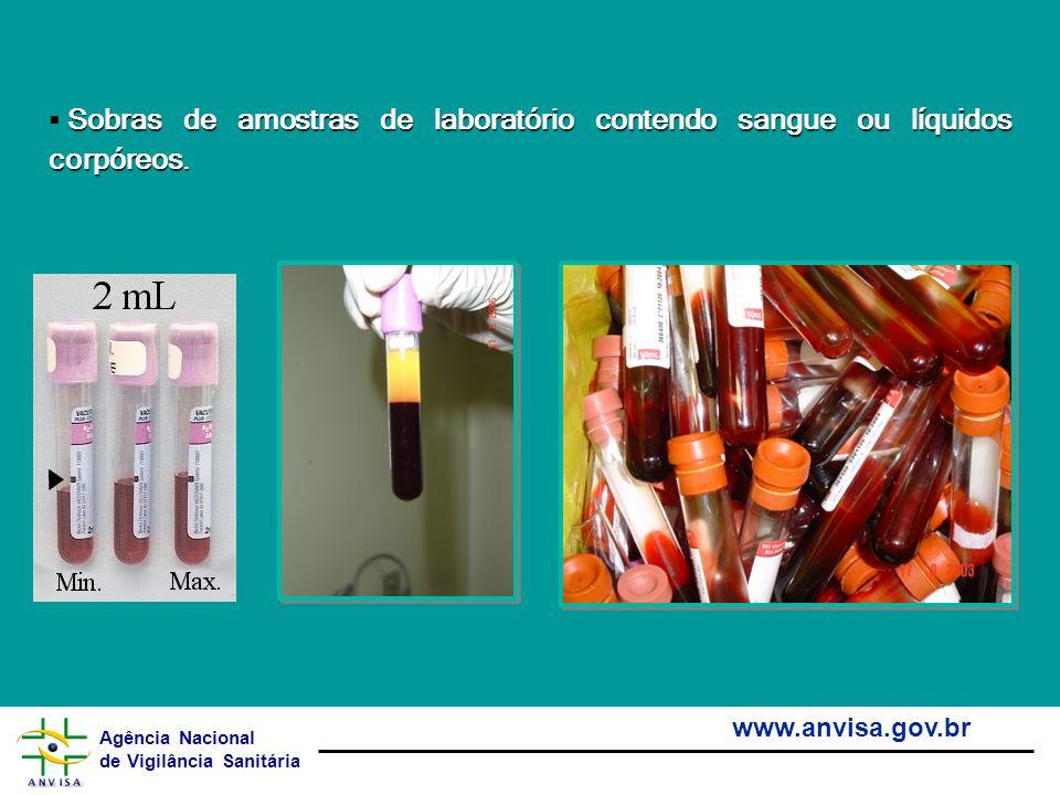 Agência Nacional de Vigilância Sanitária www.anvisa.gov.br Sobras de amostras de laboratório contendo sangue ou líquidos corpóreos.