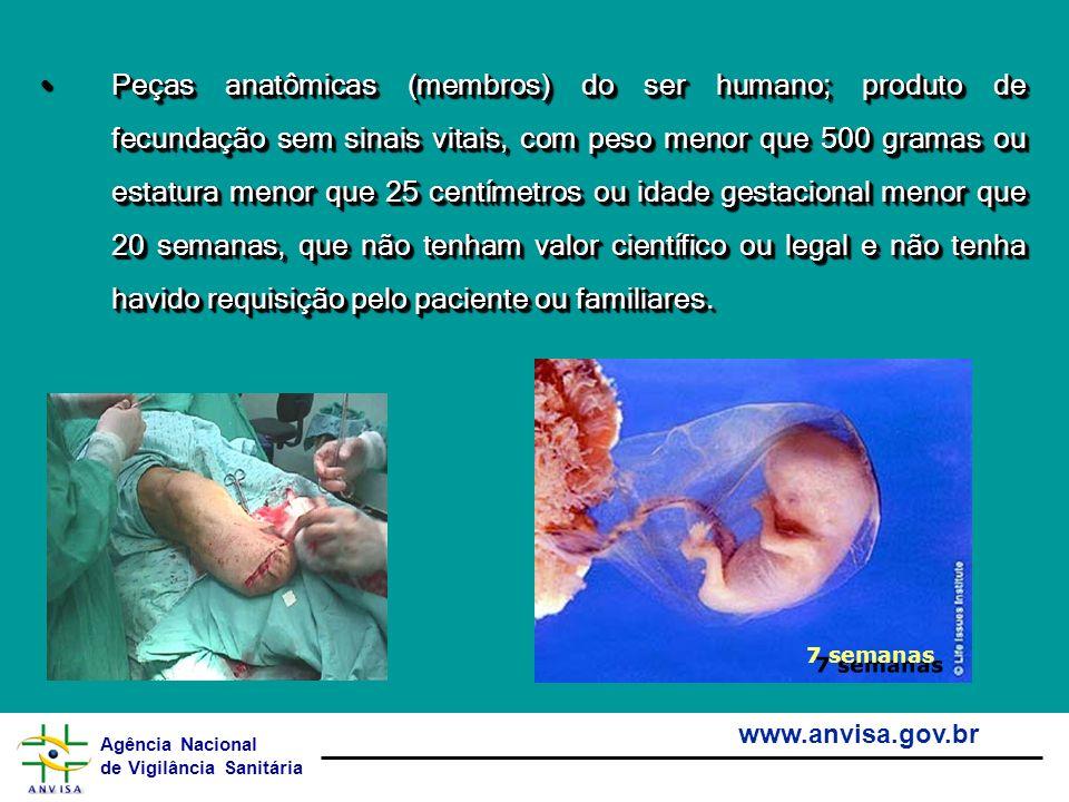 Agência Nacional de Vigilância Sanitária www.anvisa.gov.br Peças anatômicas (membros) do ser humano; produto de fecundação sem sinais vitais, com peso