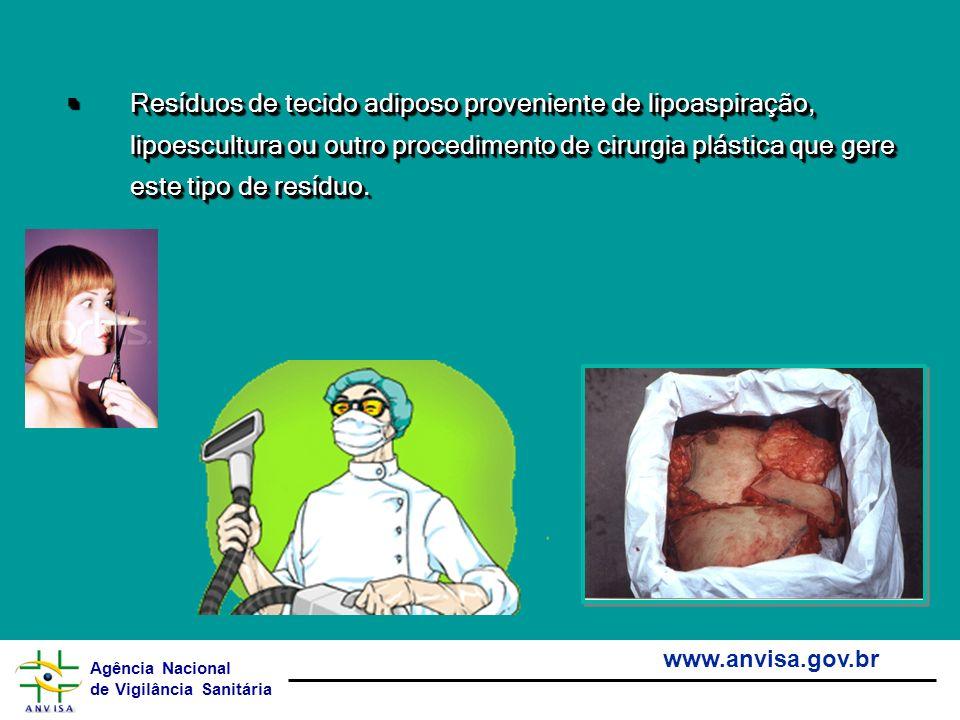 Agência Nacional de Vigilância Sanitária www.anvisa.gov.br Resíduos de tecido adiposo proveniente de lipoaspiração, lipoescultura ou outro procediment