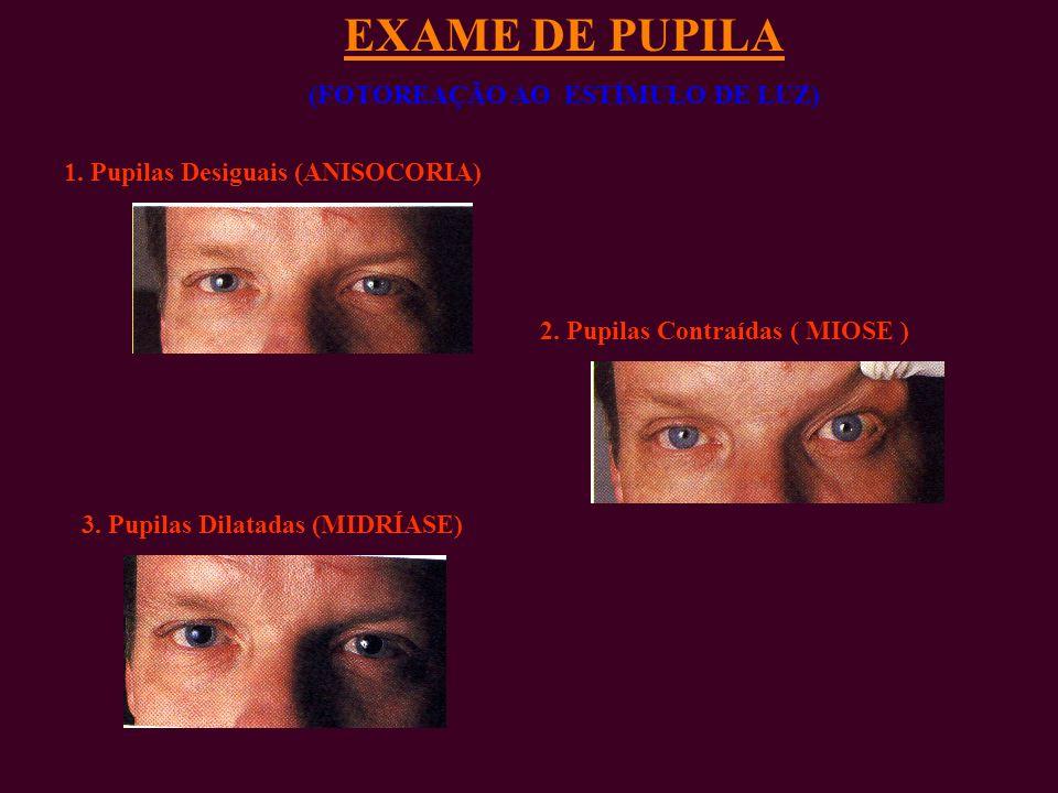 EXAME DE PUPILA (FOTOREAÇÃO AO ESTÍMULO DE LUZ) 1.