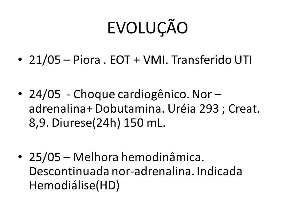 EVOLUÇÃO 21/05 – Piora.EOT + VMI. Transferido UTI 24/05 - Choque cardiogênico.